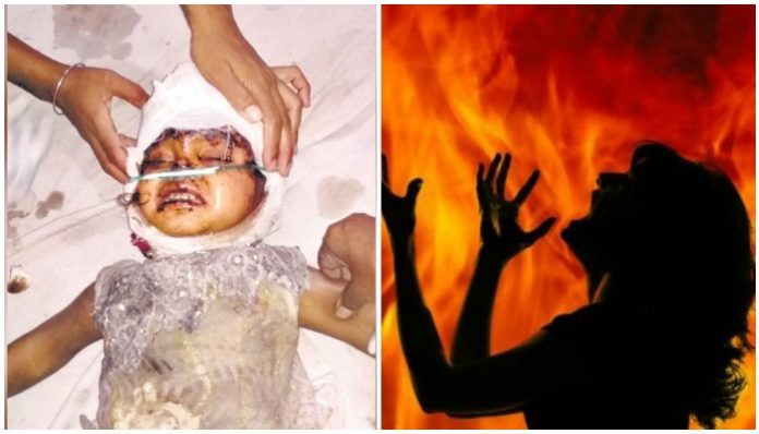 alirajpur-blind-woman-burnt-by-putting-kerosene-on-face