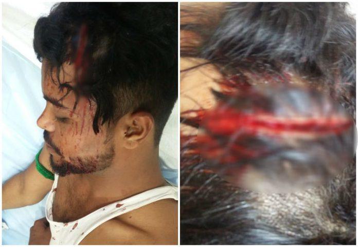 three-boy-attack-on-head-in-bhopal
