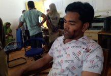 attack-on-Former-Shiv-Sena-leader-