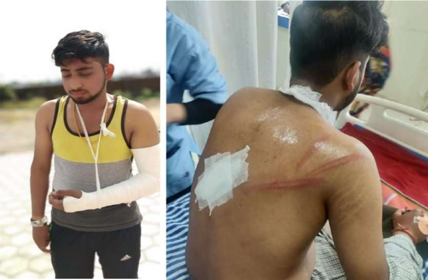 attack-on-Congress-leader's-son-in-bhopal-