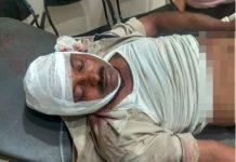 crime-firing-between-two-groups-in-gotegaon-one-policemen-injured-nursinghpur