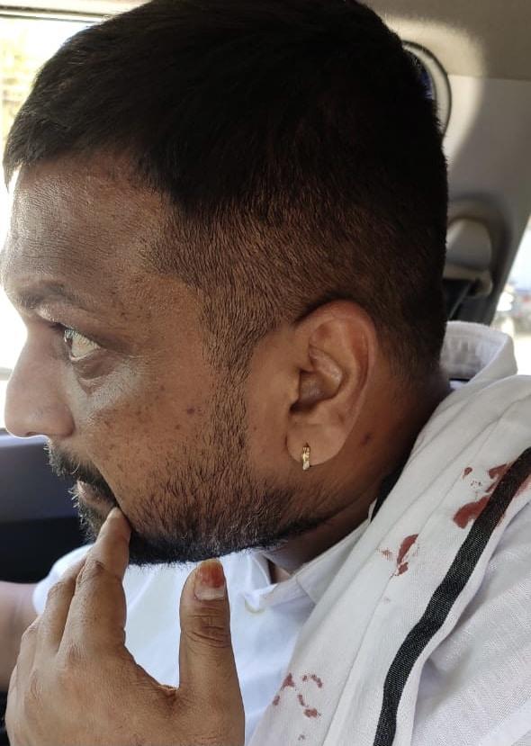 VIDEO : प्रदर्शन में कांग्रेस कार्यकर्ता की अंगुली हुई अलग, भड़के कमलनाथ